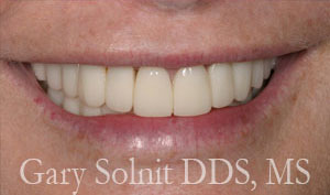 Beverly Hills Occlusal Disease Treatment & Adjustment