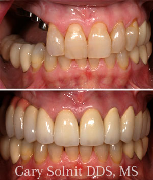 Beverly Hills Dental Implants