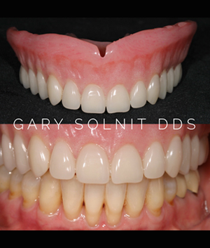 Beverly Hills Prosthodontist Before & After Photo